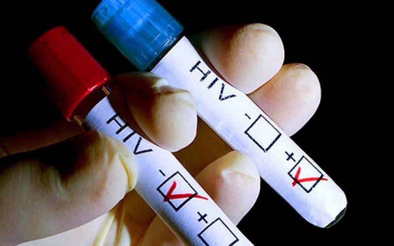Брянцам предлагают узнать свой ВИЧ-статус