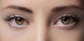 Офтальмологи провели первую операцию по сохранению зрения при помощи генов