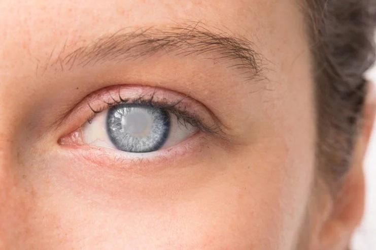 Ученым удалось вылечить слепоту при помощи технологии генного редактирования