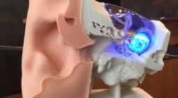 Созданы импланты, возвращающие слух